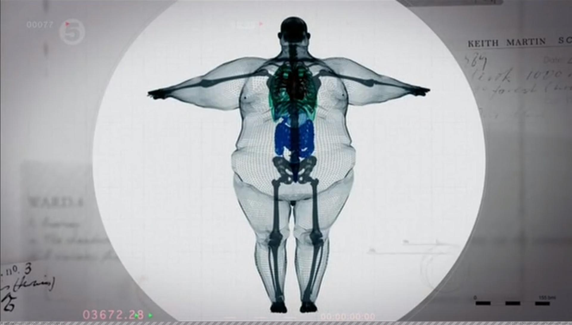 Obesity 2016
